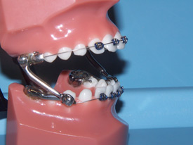 Herbst Appliance Therapy - Orthodontist Charlotte NC | Harris ...